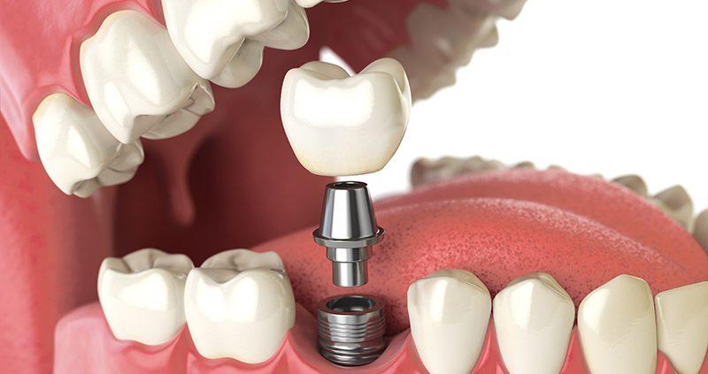 تصویر از درباره ایمپلنت دندان بیشتر بدانیم