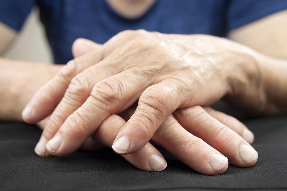 تصویر از ویتامینی که از ابتلا به رماتیسم مفصلی جلوگیری میکند
