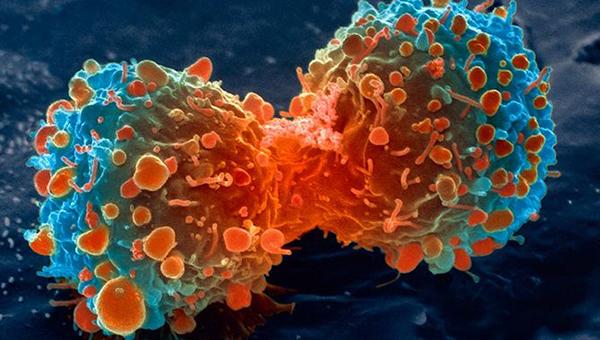 انواع سرطانها وعوامل ایجاد آنها
