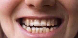 سلیاک و لکههای دندانی