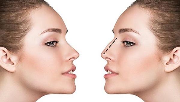 عمل جراحی بینی یا رینوپلاستی