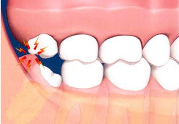 دلیل نامگذاری دندان عقل