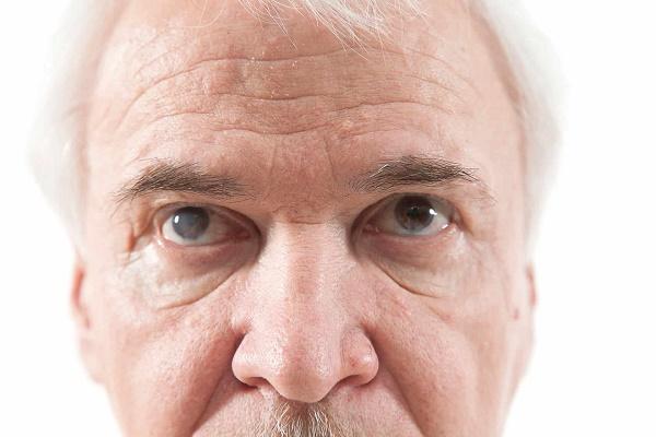 آب مروارید، شایع ترین بیماری چشم در دوران سالمندی