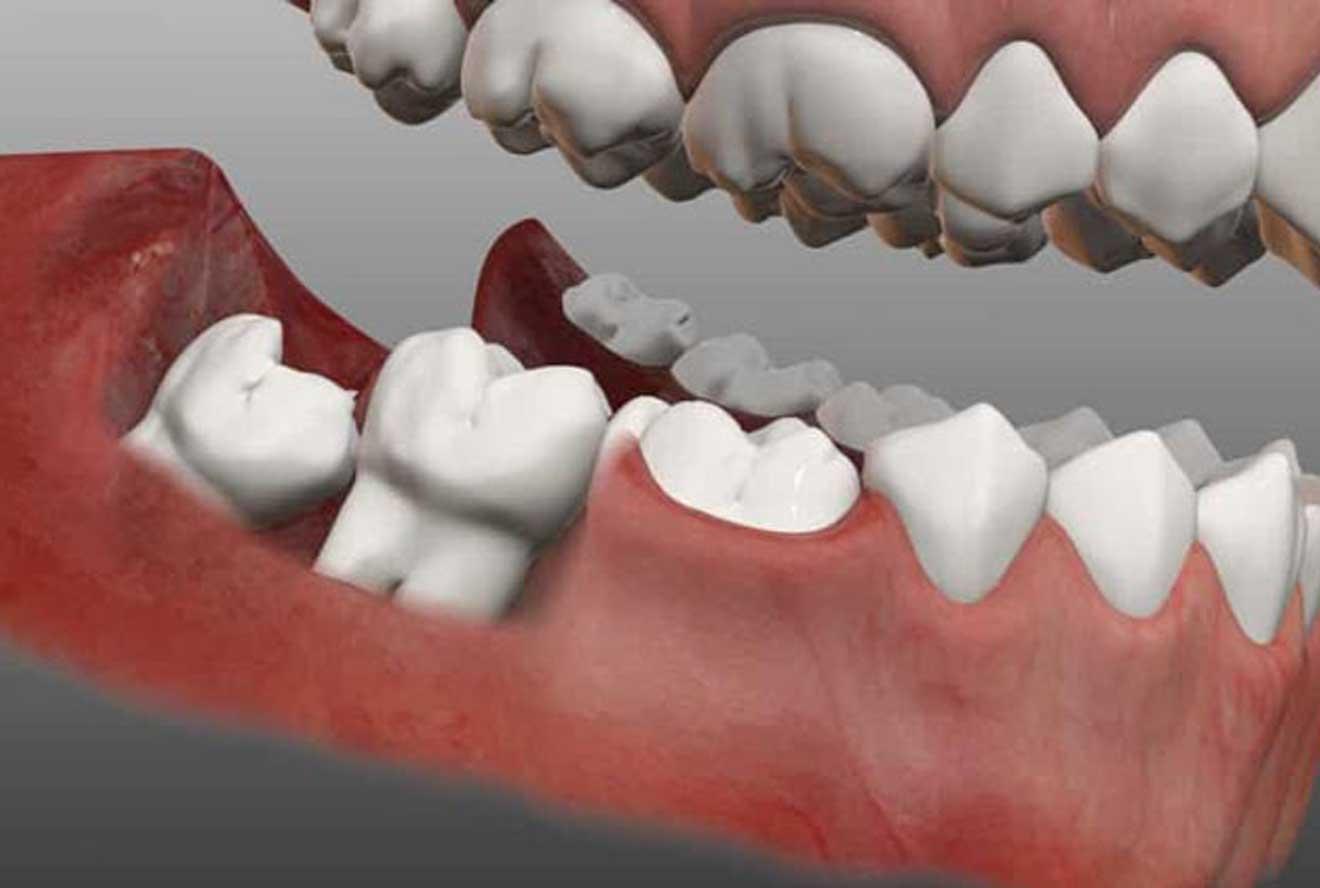 تصویر از دندان عقل را بکشید