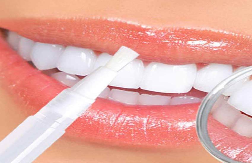 استفاده از سفیدکنندههای دندان