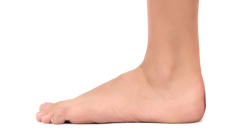 تصویر از دلیل صافی کف پا چیست و چطور درمان میشود؟