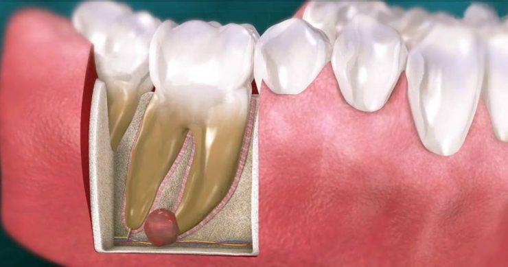 تصویر از بهترین روش تشخیص و درمان کیست دندان