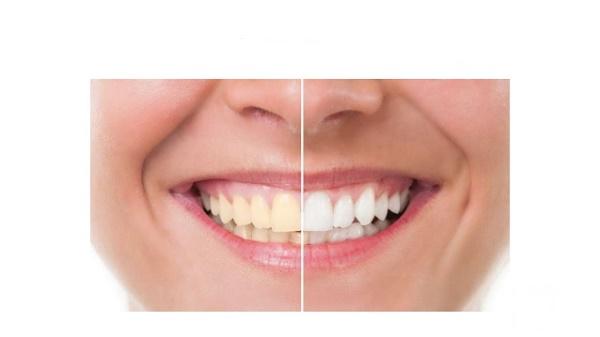 تصویر از ۱۵ خوراکی که باعث زرد شدن دندانهایتان میشوند