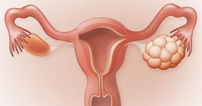 تصویر از تنبلی تخمدان چه نشانههایی دارد؟ تغذیه مناسب برای درمان تنبلی تخمدان
