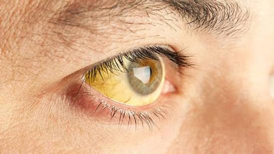تصویر از هشدار! هپاتیت در کمین شماست، کبد را دریابید