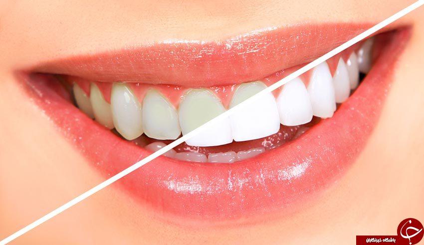 تصویر از سفید کردن دندان با جوششیرین در کمتر از۳دقیقه