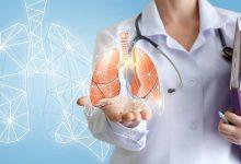 تصویر از سلامت ریه را با این ۲۰ خوراکی تضمین کنید