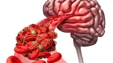 تصویر از علائم وجود لخته خون در بدن چیست و چه عوارضی دارد؟