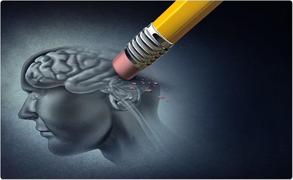 تصویر از ۱۱ فعالیت مؤثر برای پیشگیری از آلزایمر در سالمندان