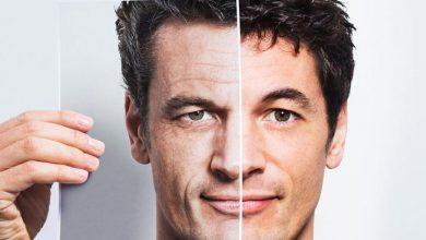 تصویر از درمان چروک دور چشم؛ ۹ روشی که پیری را به تعویق میاندازد