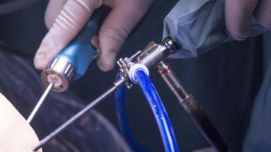 تصویر از جراحی آرتروسکوپی زانو چیست و چه موقع باید انجام شود؟