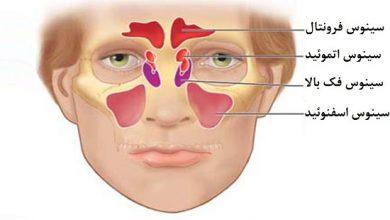 تصویر از سینوزیت چیست و چگونه آن را درمان کنیم؟