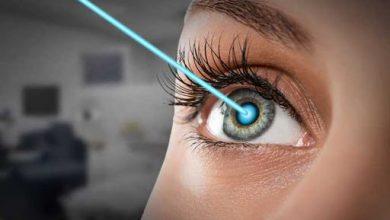 تصویر از سه تمرین برای بهبود انحراف چشم