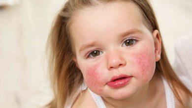 تصویر از ۷ نشانه حساسیت غذایی در کودکان