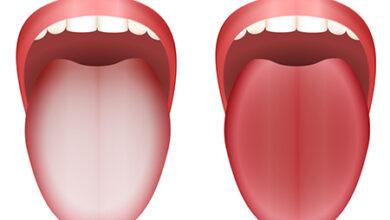 سفیدی زبان