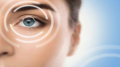 حساسیت چشم به نور